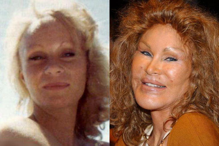 jocelyn-wildenstein (1)